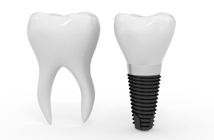 Dental Implant and molar side by side