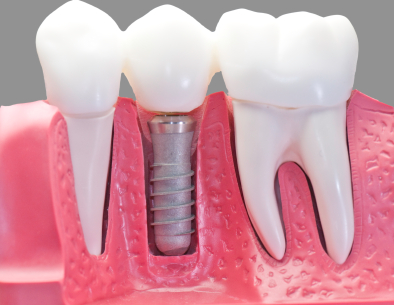 Model of dental implant screw with artificial tooth