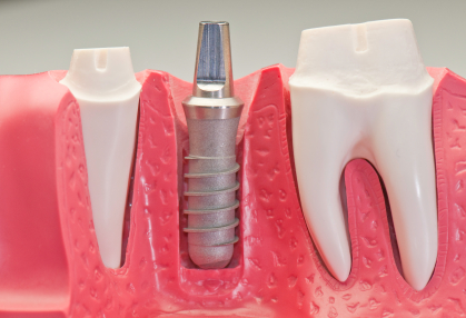 Model of dental implant screw withouth artificial tooth